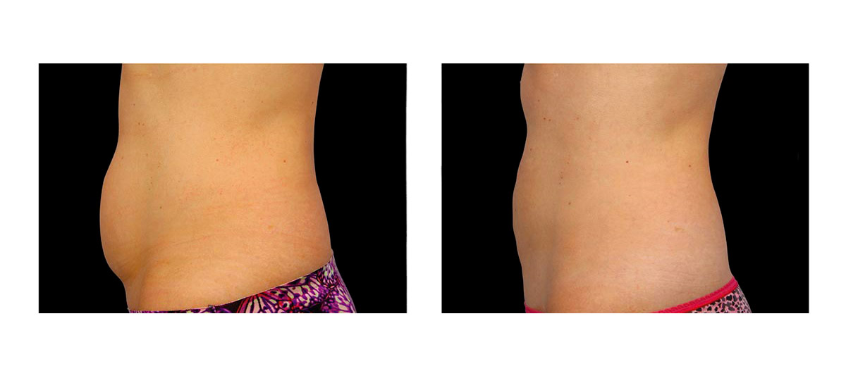 Coolsculpting Corpo 1