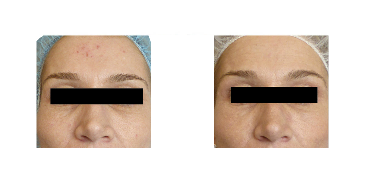Eliminazione Cicatrici Smagliature Needling 2