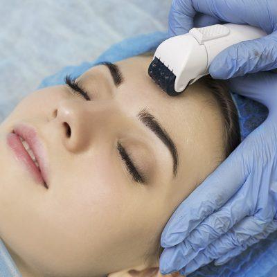 Eliminazione cicatrici e smagliature con needling