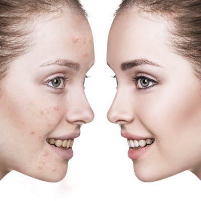 Eliminazione acne, macchie, melasma con Zo Slkin