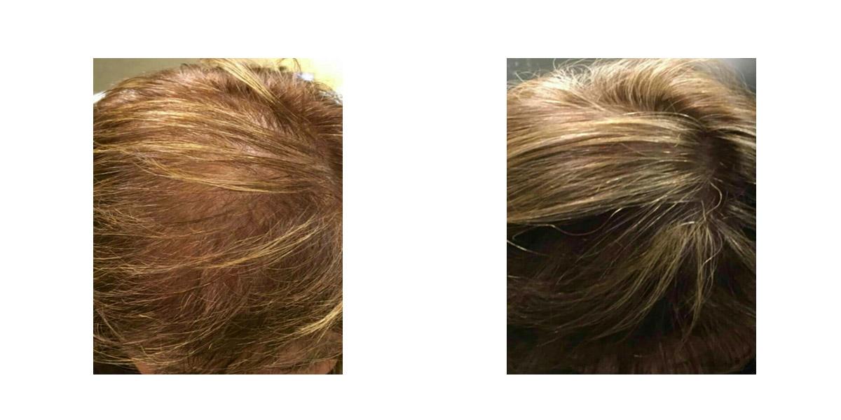 Trattamento Caduta Capelli Hair Filler Prima Dopo 1