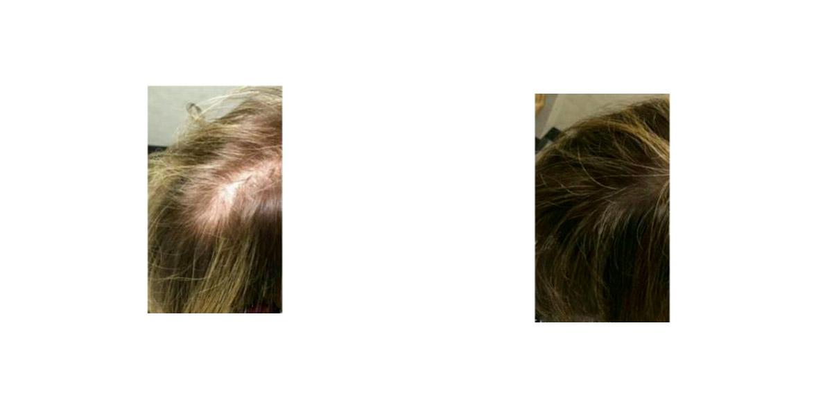 Trattamento Caduta Capelli Hair Filler Prima Dopo 2