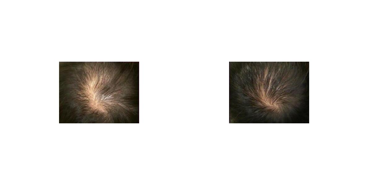 Trattamento Caduta Capelli Hair Filler Prima Dopo 4