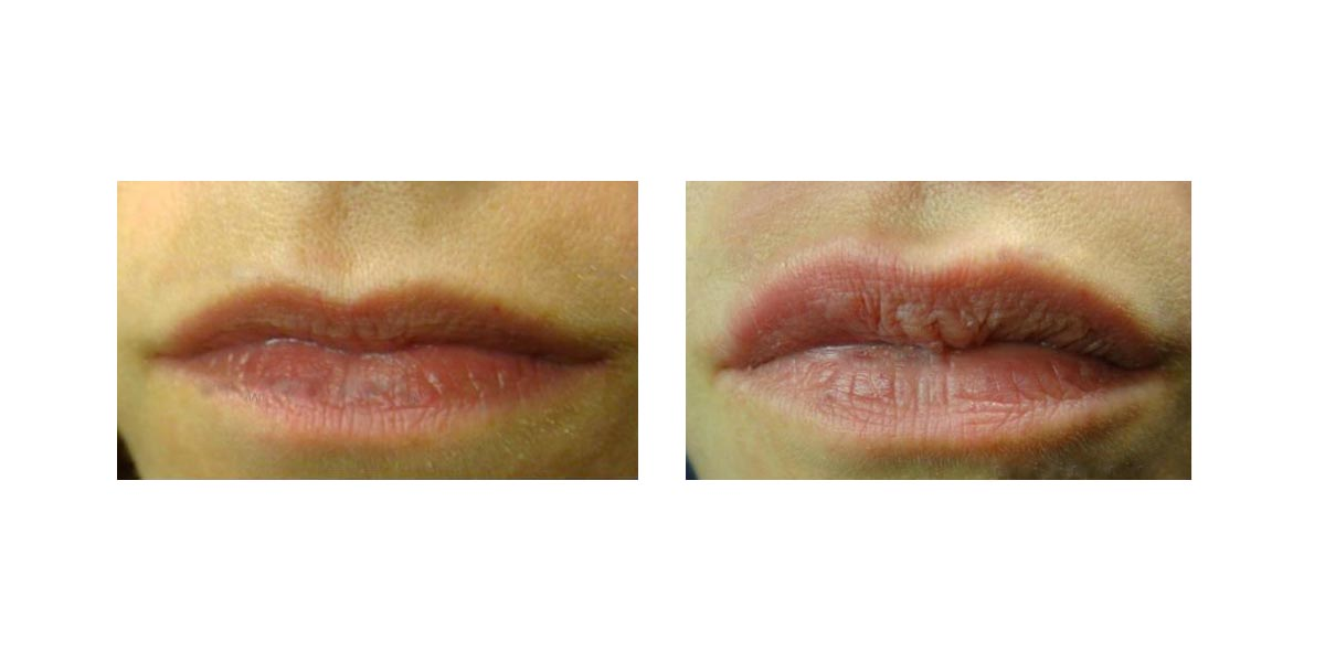 Aumento Labbra Senza Filler 1