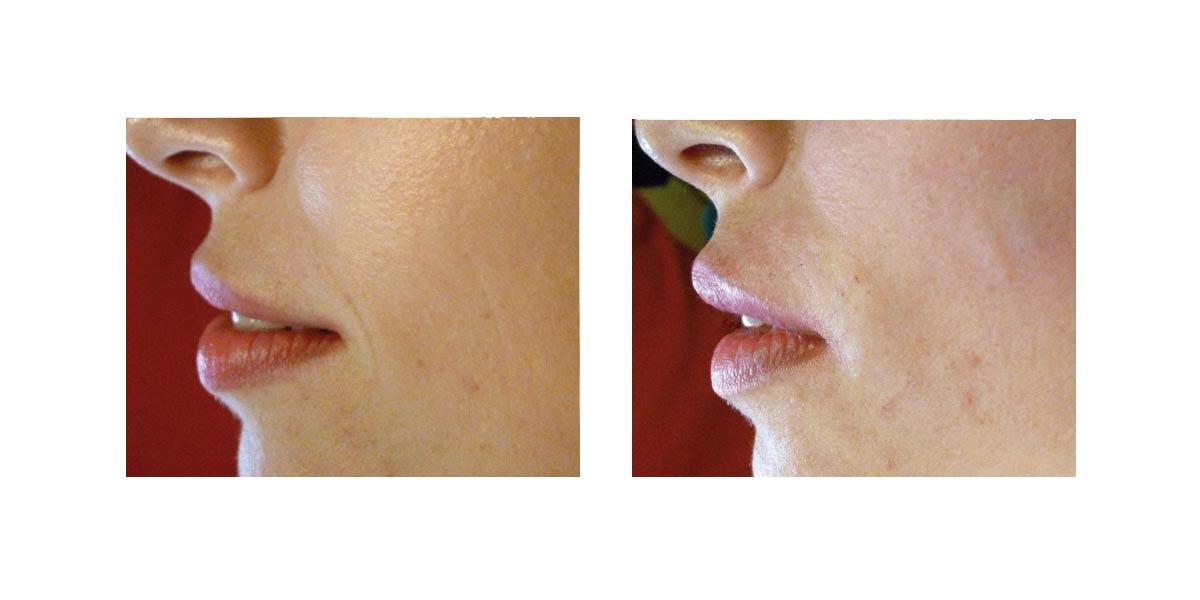 Aumento Labbra Senza Filler 2