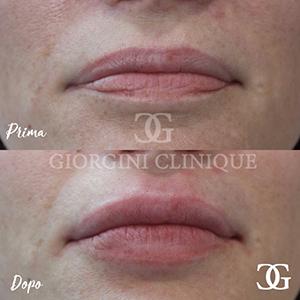 Fille labbra Dottoressa Giorgini