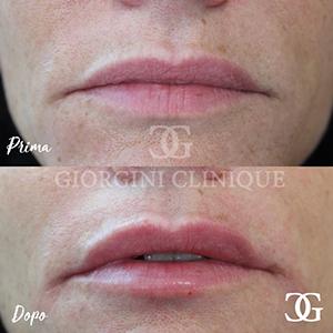 Filler labbra Dottoressa Giorgini
